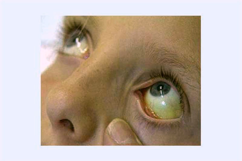 Хронический иерсиниоз.Что за инфекция?