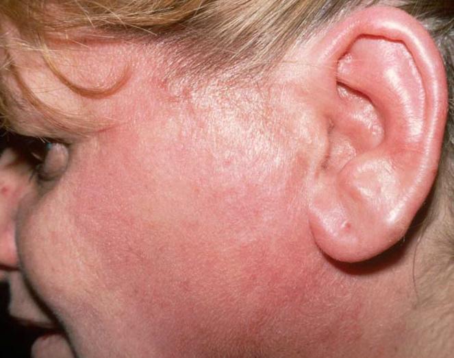 Как избежать рецидивов при инфекционном заболевании рожа