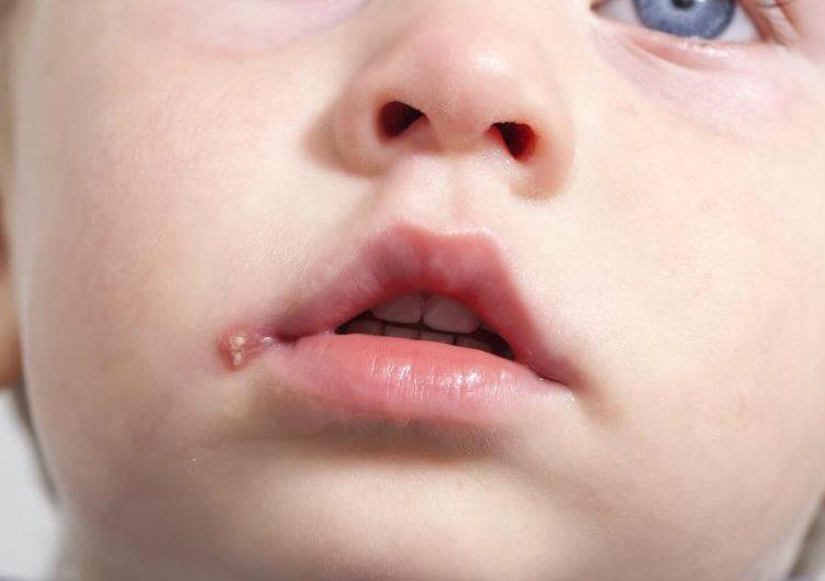 Какие причины частых простуд у взрослых