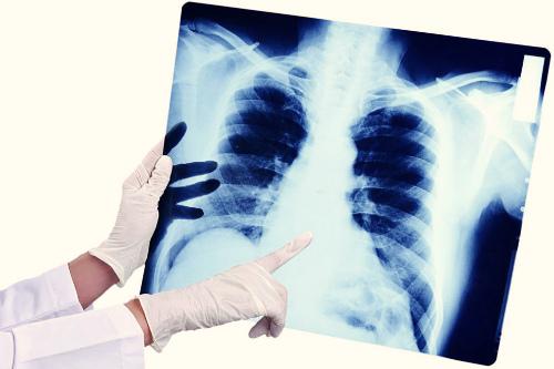 Учтите у гриппа и ОРВИ серьезные осложнения