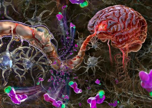 Подход к лечению нейроинфекции
