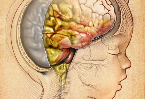 Возможные последствия нейроинфекции