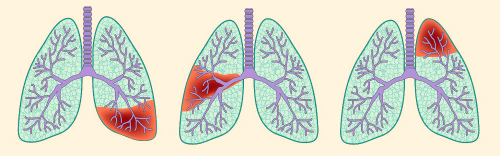 Характерна ли температура при заболевании легких