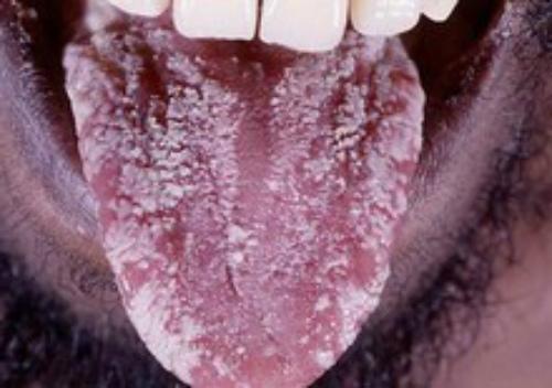 Что такое последствия ВИЧ