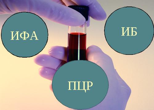 Основные методы профилактики ВИЧ