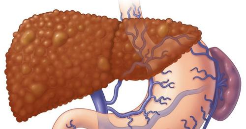 Какая этиология вирусных циррозов печени