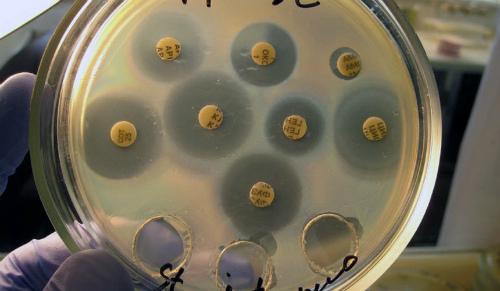 Когда нужен антибиотик от дисбактериоза кишечника
