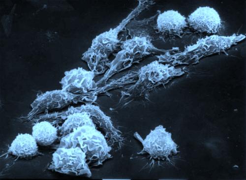 Внимание ВЭБ инфекция хроническая