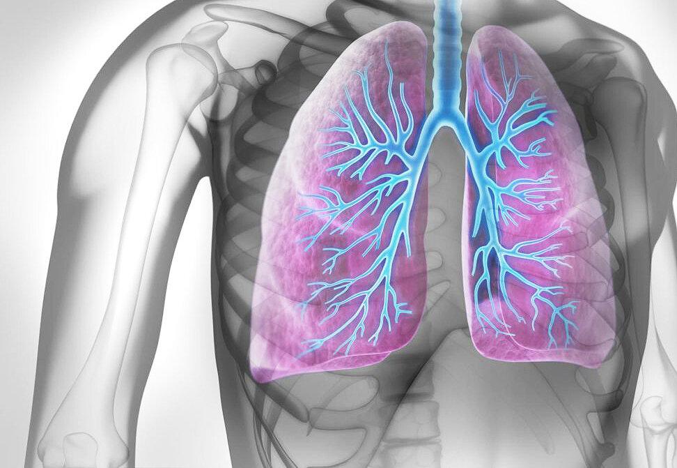 Узнай, как в домашних условиях вылечить пневмонию